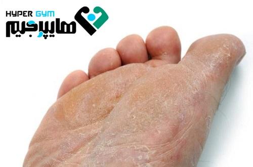 مشکلات پوستی که ممکن است با ورزش به وجود بیاید